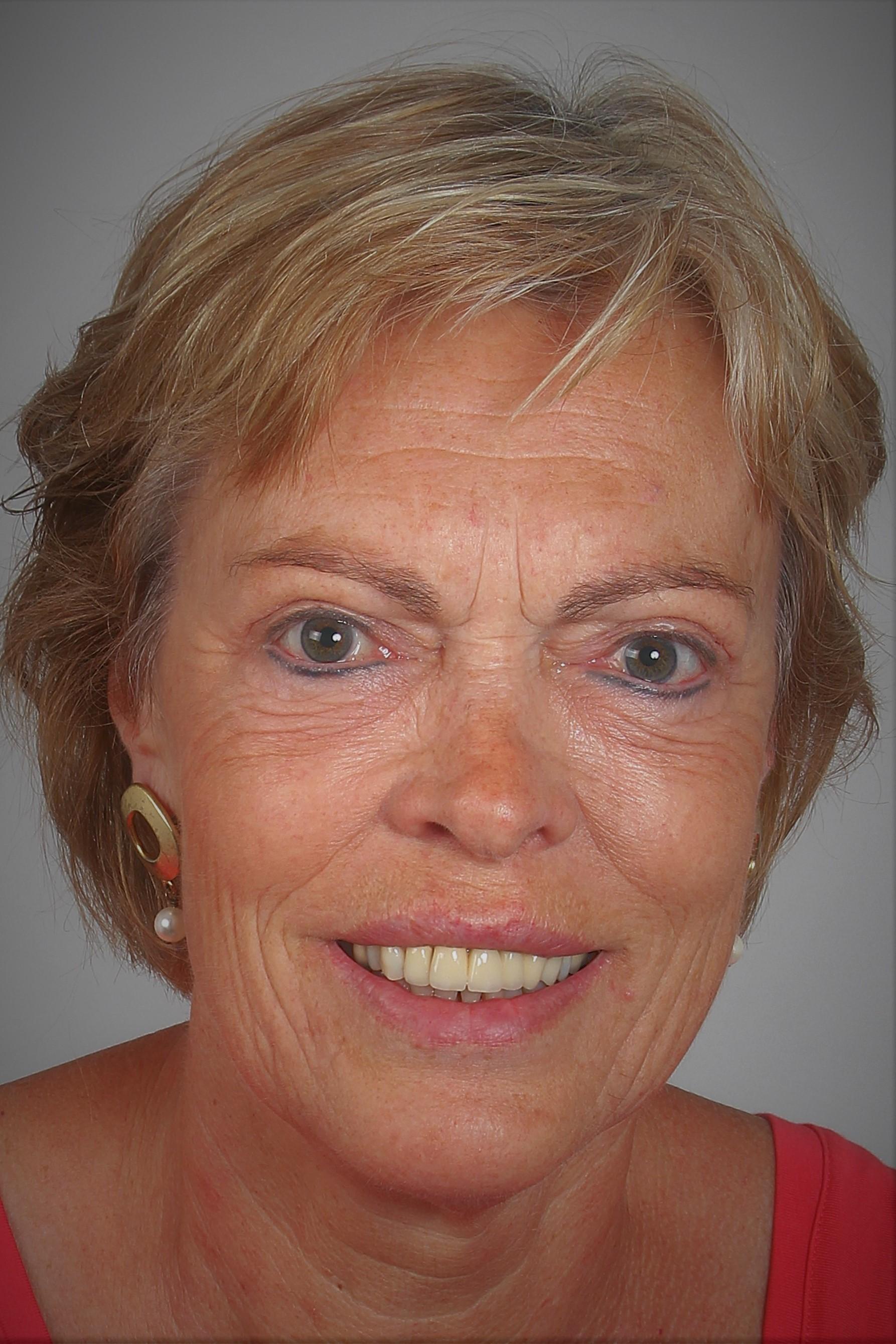 Gerda Hofste, Oldenzaal